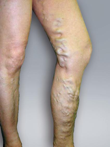 Anzeichen Thrombose Im Bein